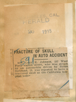Fracture of skull in auto accident